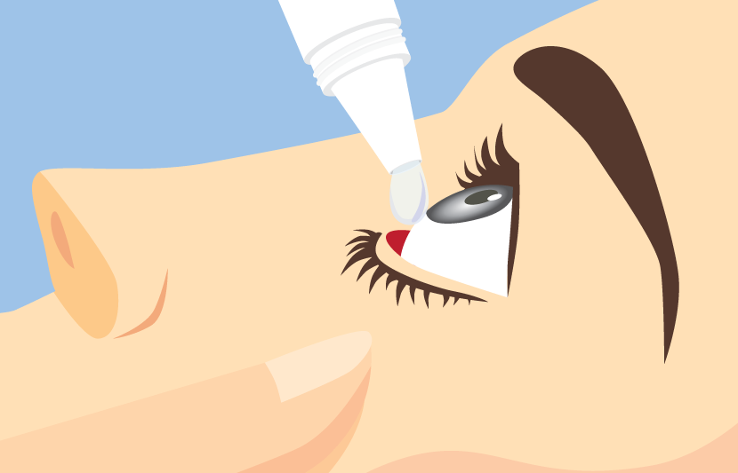 How to put eye drops in
