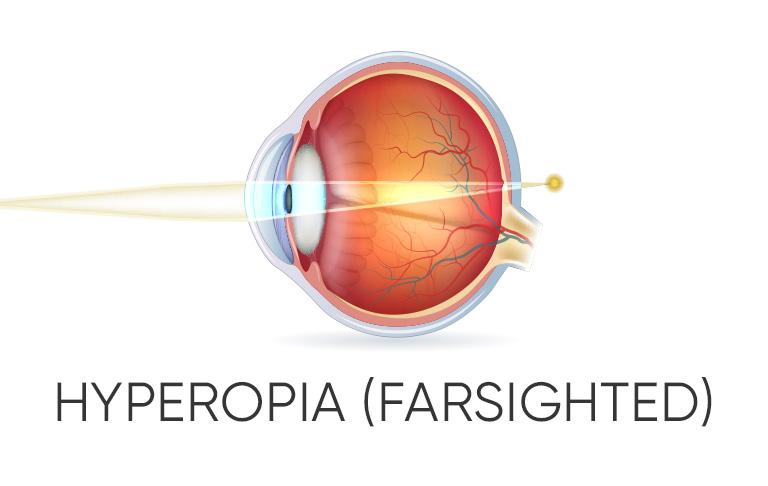 Eye with Hyperopia