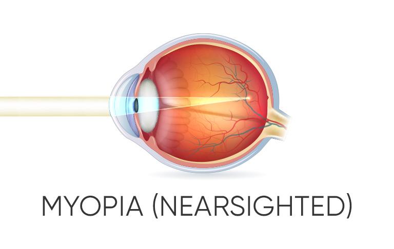 Eye with Myopia