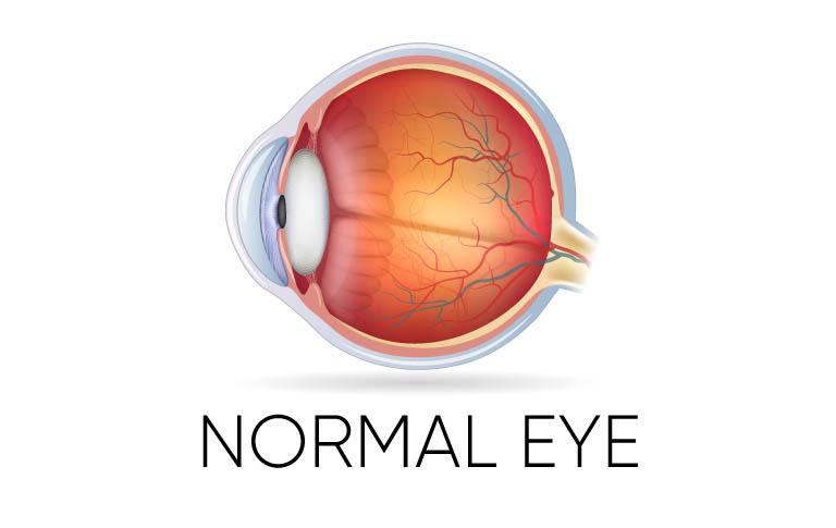 Normal Eye